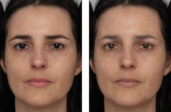 """The left image shows a face with facial contrast increased and the right image shows the same face with facial contrast decreased."""